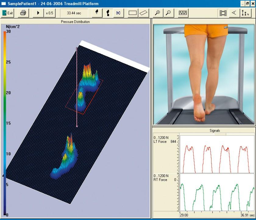FDM-T System - Grafik